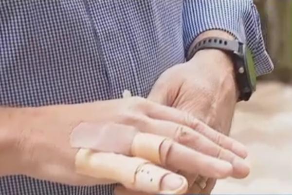 Велосипедист врезался в дикого медведя и отделался переломом пальца