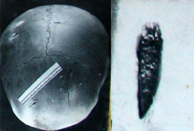 Череп Герты Грибановой и извлеченный фрагмент ножа