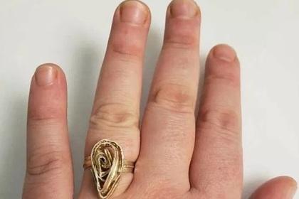Помолвочное кольцо девушки сравнили с детородным органом и лапшой