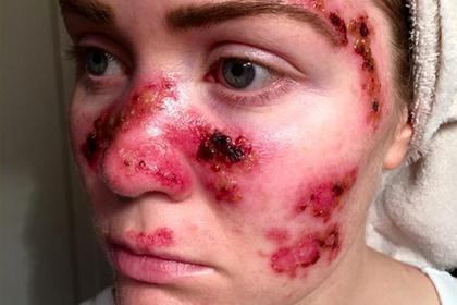 Женщины рассказали о смертельно опасных последствиях посещения солярия