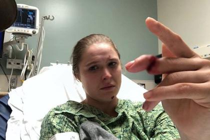 Бывшая чемпионка UFC Роузи показала едва не оторванный палец