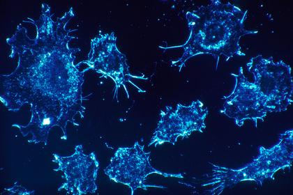 Раскрыт способ борьбы с неизлечимыми опухолями