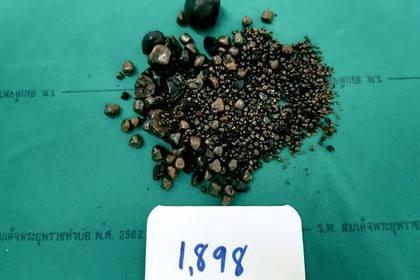 Врачи извлекли из женщины две тысячи желчных камней