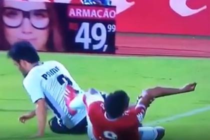 Бразильский футболист получил «жуткий» перелом руки во время матча