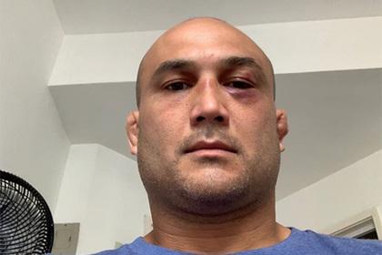 Бывший чемпион UFC оправдался за нокаут от полураздетого мужчины на улице