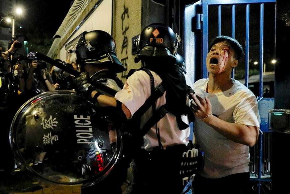 Полиция задерживает раненого в столкновениях с полицией жителя Гонконга