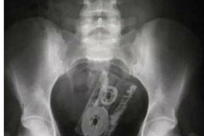 Доктора поделились снимками странных предметов внутри людей