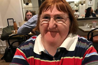Блогерша с инвалидностью проучила обозвавших ее уродиной хейтеров