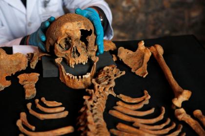 Зафиксированы признаки «жизни» у мертвых тел