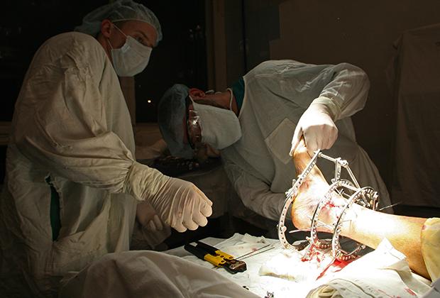 Хирурги проводят операцию по установке аппарата Илизарова на травмированную стопу