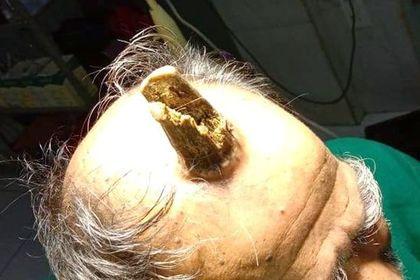 Мужчине удалили 10-сантиметровый «дьявольский» рог
