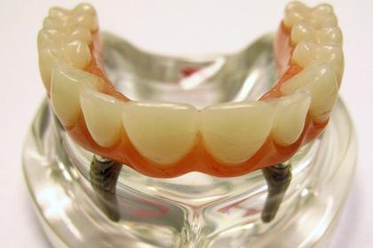 Зубные имплантаты признали опасными