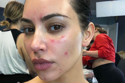 Ким Кардашьян показала пораженное болезнью лицо на фото без макияжа