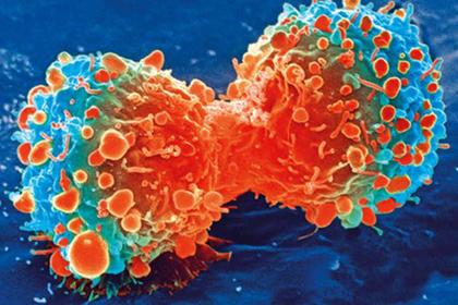 Назван главный прорыв в лечении рака