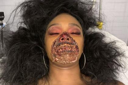 Артистка попала в больницу загримированной под зомби и вызвала панику у врачей