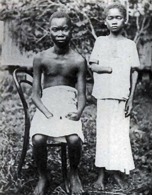 Конголезцы с ампутированными конечностями, 1900 год. Ампутация кистей часто применялась в Свободном государстве Конго (ныне Заир), которое с 1895 по 1908 год было личным владением Леопольда II, в качестве наказания за провинности
