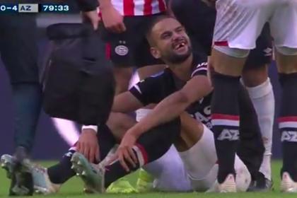 Футболист остался без нескольких зубов после столкновения с соперником
