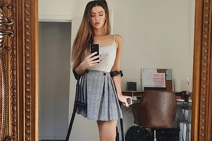 Девушка без ноги показала фото в юбке и получила шквал непристойных комментариев