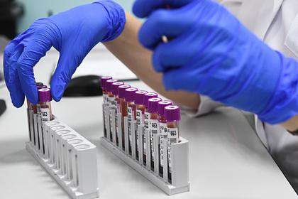 Россия получит доступ в созданные на деньги США биолаборатории