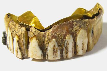 Найдена 200-летняя вставная челюсть из золота и кости