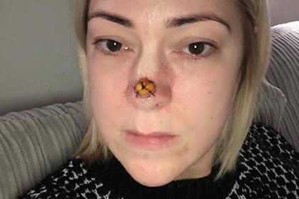 Маленькая точка на носу женщины оказалась раковой опухолью