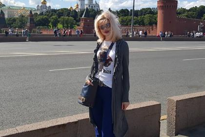 Облитая кислотой российская модель рассказала о жизни после 200 операций