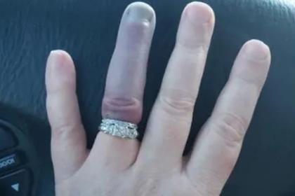 Посиневший из-за узкого кольца палец невесты смутил пользователей сети