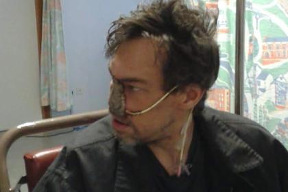 Мужчина принял рак за простуду и остался с дырой вместо носа