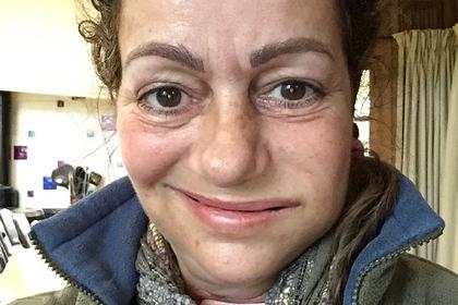 Маленькая язва на губе женщины оказалась смертельной болезнью