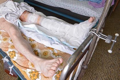 В российской больнице инвалида заставили снимать гипс плоскогубцами