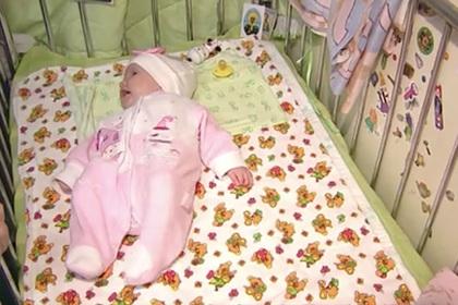 В России новорожденной удалили опухоль больше ее головы