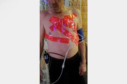 Российский врач скотчем приклеил к телу пациента прибор для ЭКГ