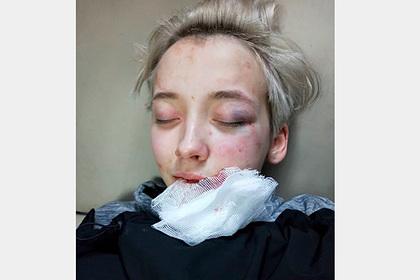 В России семеро парней избили 18-летнюю девушку из-за ориентации