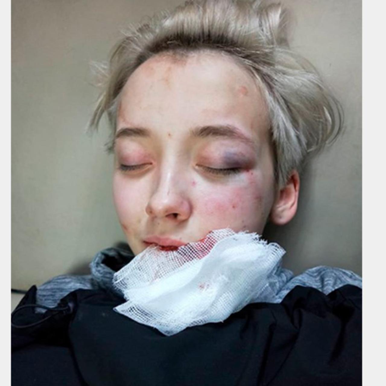 Избиение Лесбиянок В России