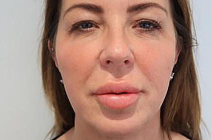 Женщина увеличила губы ко дню рождения и три года проходила с «рыбьим ртом»
