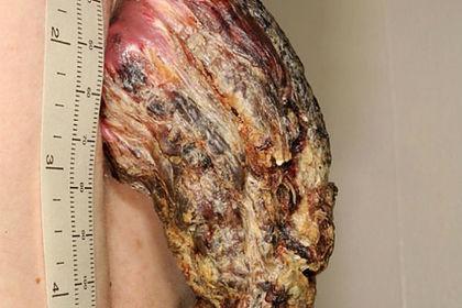 Мужчина три года отращивал на спине 14-сантиметровый рог