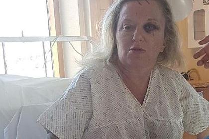 Женщина пожаловалась на избиение из-за внешности