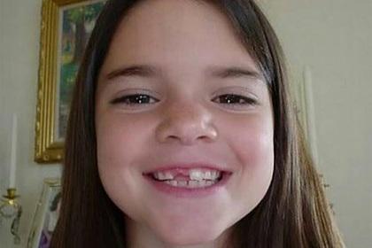 Опубликовано фото «единственной красавицы в семье Кардашьян» без зуба
