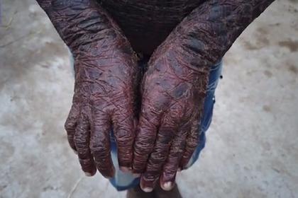 Мальчика с «чешуей» по всему телу прозвали змеей из-за редчайшей болезни