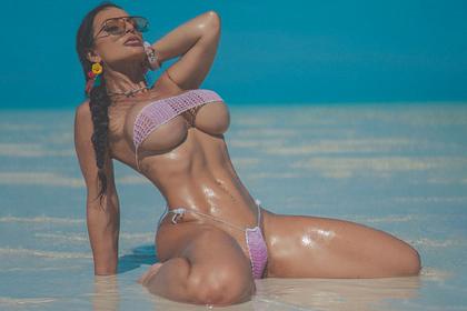 Модель с диагнозом как у Бибера стала чемпионкой и снялась для обложки Playboy