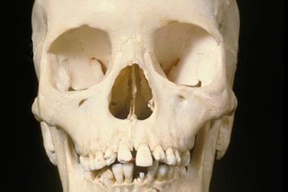 Сидящий на диване скелет обнаружили в заброшенном доме