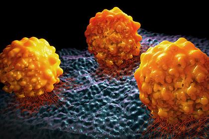 Найден способ предотвратить смертельную стадию рака