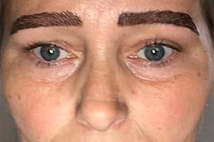 Популярная косметическая процедура обернулась для женщины опасным заражением