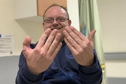 Сапожнику пришили большой палец ноги вместо большого пальца руки