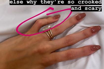 Жена Бибера показала врожденную мутацию руки