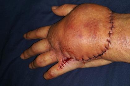 Женщина подхватила смертоносную инфекцию при распаковке коробки