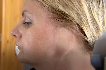Женщина лишилась уха из-за пристрастия к загару и соляриям