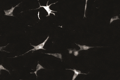 У человеческой кожи обнаружили способности мозга