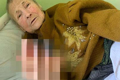 Российская пенсионерка обморозила руки в собственном доме