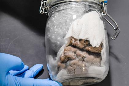 В почтовом грузовике нашли банку с человеческим мозгом